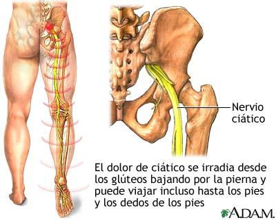 http://www.fisiolution.com/wp-content/uploads/2011/07/nervio-ci%C3%A1tico2.jpg