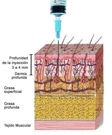 La crema del acné