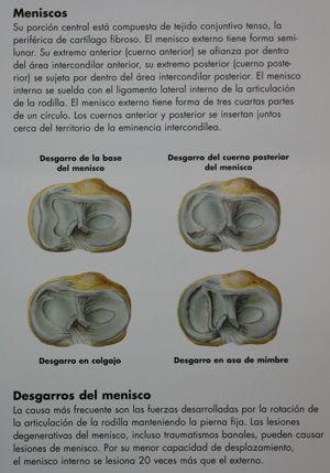 MENISCO-FISIOTERAPIA-LESION-MOD