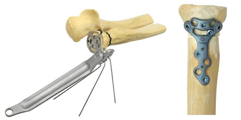 fisioterpia madrid las tablas-fractura cabeza radio2