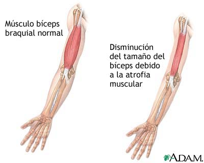 fisioterapia infantil atrofia muscular espinal