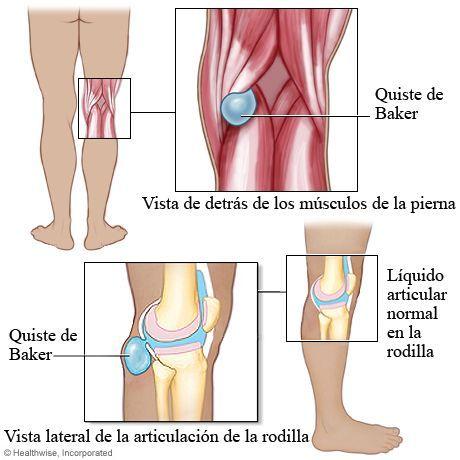 Quiste de baker qu es s ntomas y tratamiento fisiolution - Dolor en la parte interior de la rodilla ...