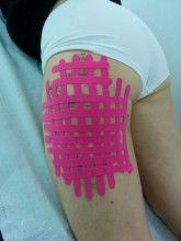 vendaje neuro muscular o kinesiotaping caso clinico ematoma reabsorcion EVA7