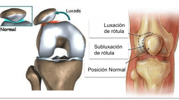 Luxación de rotula, síntomas y tratamiento.