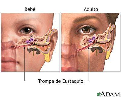 otitis 2