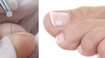 Tratamiento uñas encarnadas, nuevo sistema