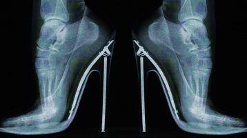 Lesiones típicas por usar zapatos de tacón