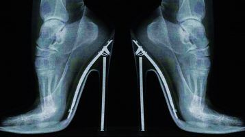 Lesiones-típicas-por-usar-zapatos-de-tacón-mod