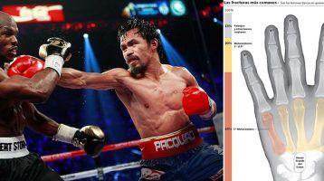 Boxeo, las lesiones más frecuentes