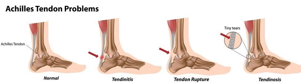 EPI excentricos tendinitis tendinosis tendon